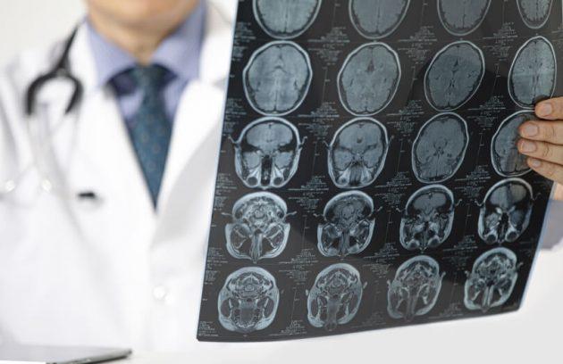 Neurology Janvi Multispeciality Hospital Vadodara
