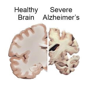 healthy brain 1