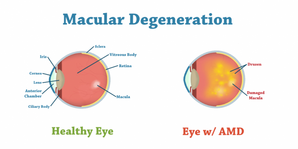 mascular degenration