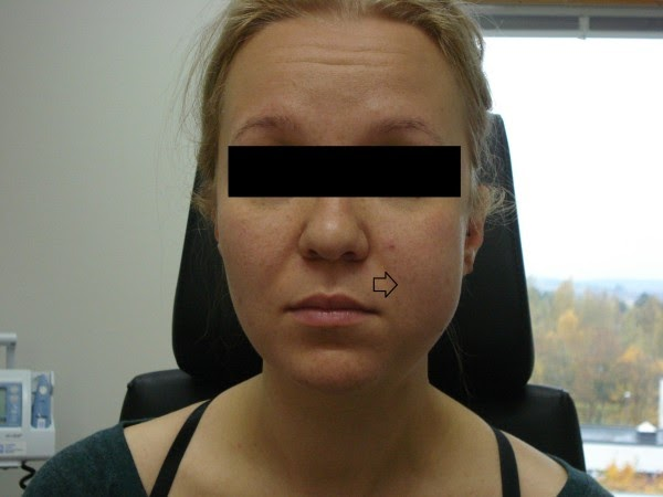 one side swelling in face