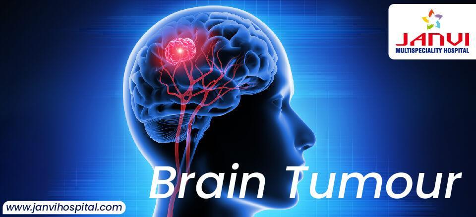 Brain Tumor 01 1